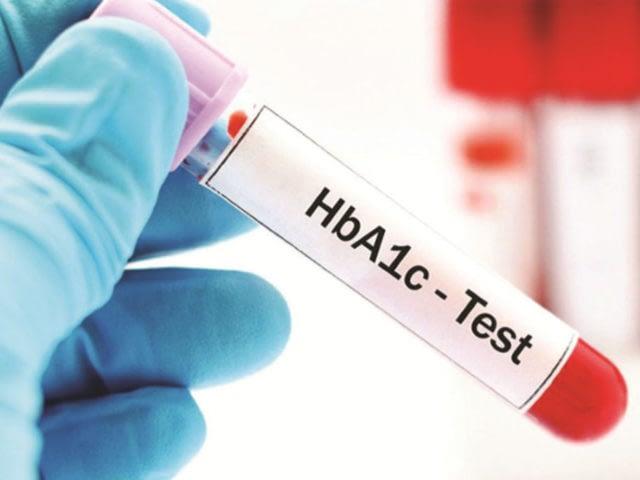 testing-diabetes-hba1c-test-1024x683-640x480_00290b10fba65d0d1dcb522da208adee.jpg